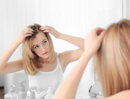 Hair loss is extremely common.