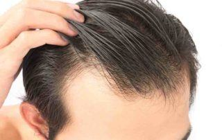 Hair Transplant Vs Replacement System