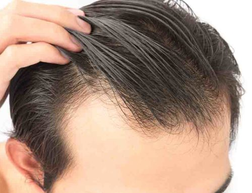 Hair Transplant vs duBrule's Innovative Hair Replacement System