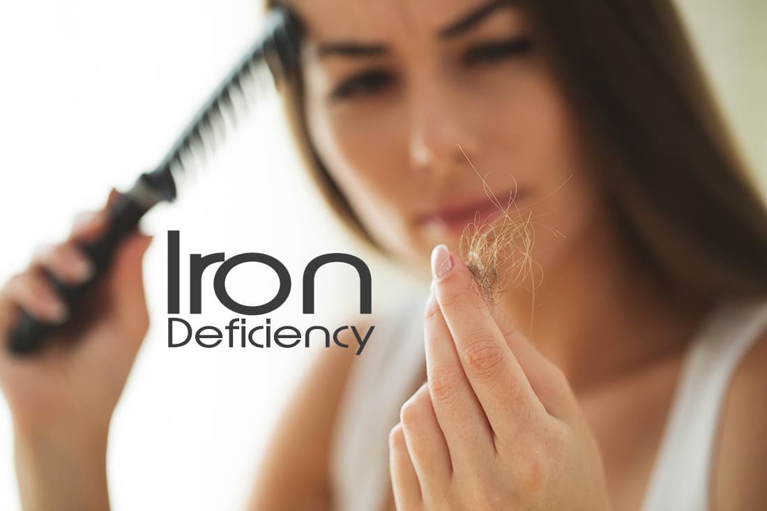Iron Deficiency and Womens Hair Loss
