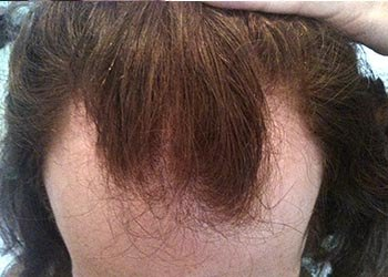 Male Client 1 Prevention Before