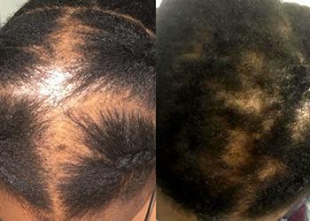 Male Hair Prevention Client 007 Laser