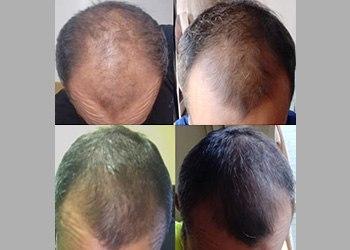 Male Hair Prevention Client 008 Laser