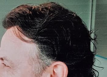 Male Hair Restoration Client 005 Ultragraft After Side