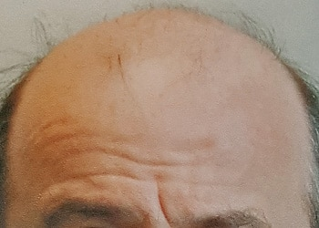 Male Hair Restoration Client 005 Ultragraft Before