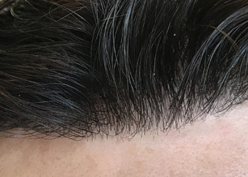 Male Hair Restoration Client 005 Zoom