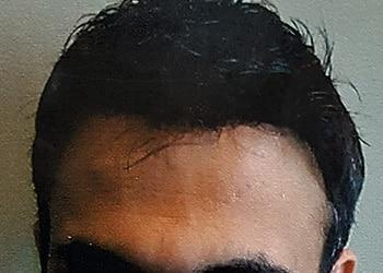 Male Hair Restoration Client 006 Ultragraft After