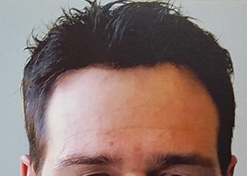 Male Hair Restoration Client 011 Ultragraft After