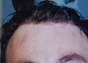 Male Hair Restoration Client 012 Ultragraft After