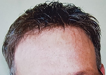 Male Hair Restoration Client 014 Ultragraft After