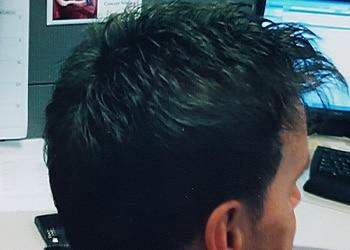 Male Hair Restoration Client 016 Ultragraft After Back
