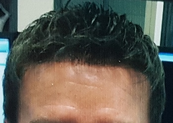 Male Hair Restoration Client 016 Ultragraft After Front