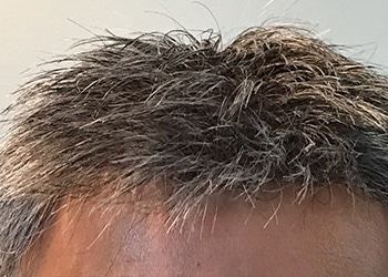 Male Hair Restoration Client 017 Ultragraft After