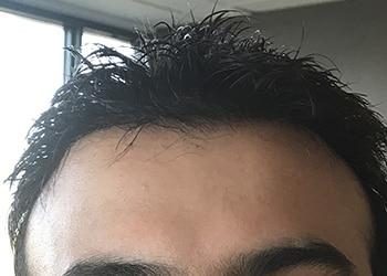 Male Hair Restoration Client 018 Ultragraft After
