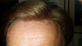 Neil Hair Restoration Testimonial duBrule