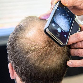 Prevention Hair Analysis Camera duBrules