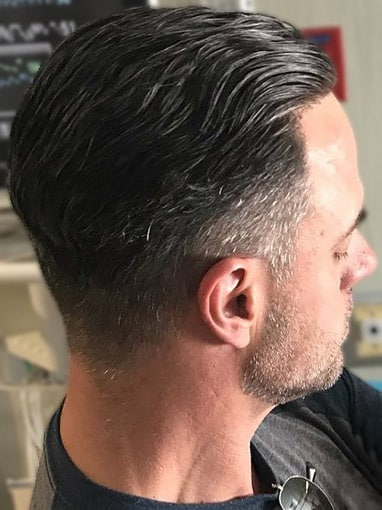 Ultragraft Non-Surgical Hair Restoration duBrule Male 3