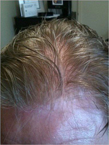 Ultragraft Non-Surgical Hair Restoration duBrules